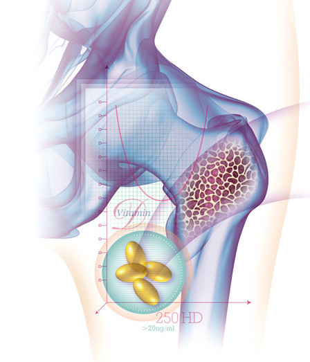 Osteoporosis, Vitamin D Illustration, Medical Illustration, Tom White, 9 Surf Studios, Directory of Illustration