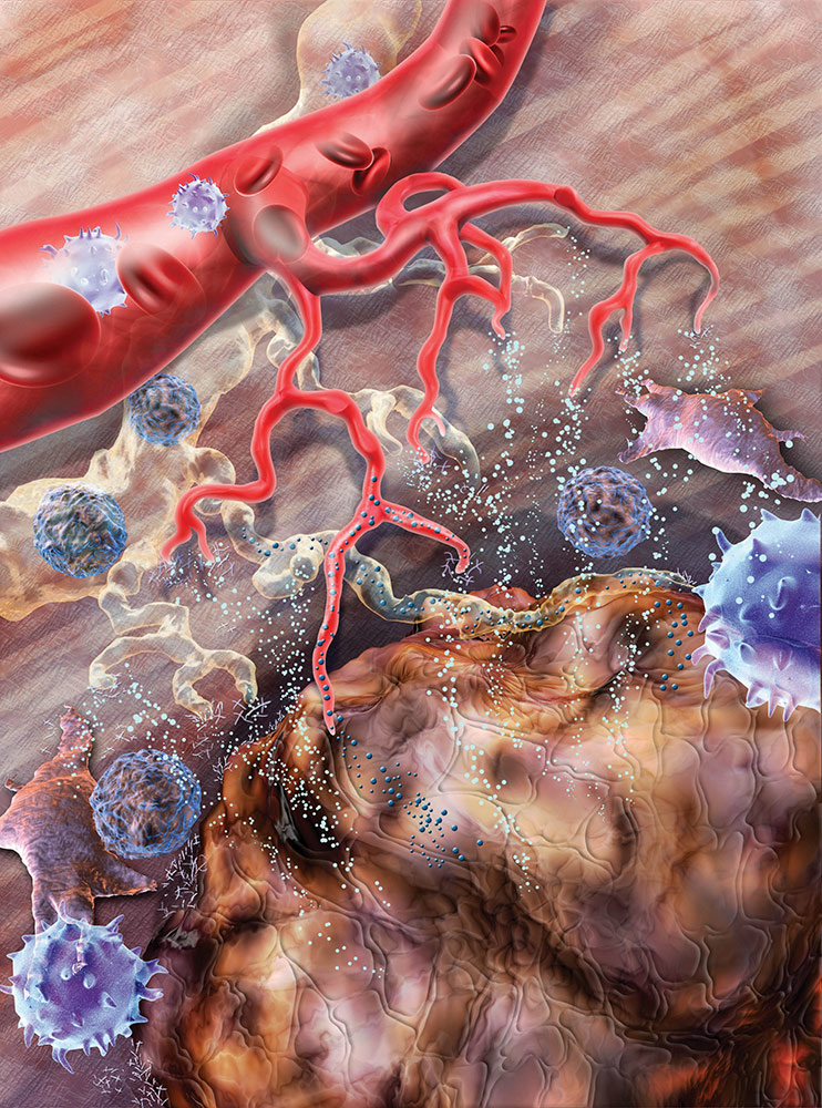 A tumor attracts blood and lymphatic vessels (known as angiogenesis and lymphangiogenesis, respectively) in order to consume more nutrients to continue its rapid growth.